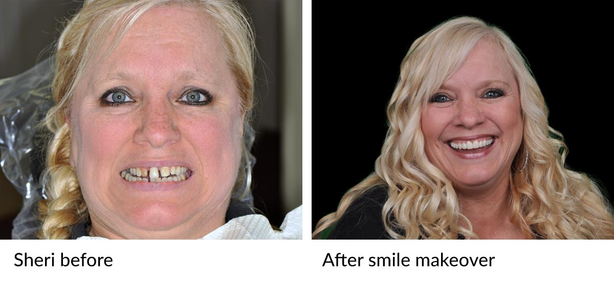 Sheri's before and after